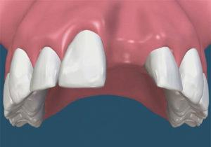 Bone Grafting Worcester Periodontics